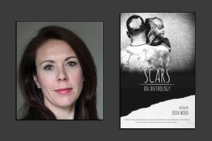 The cover of Scars: An Anthology by Erin Wood